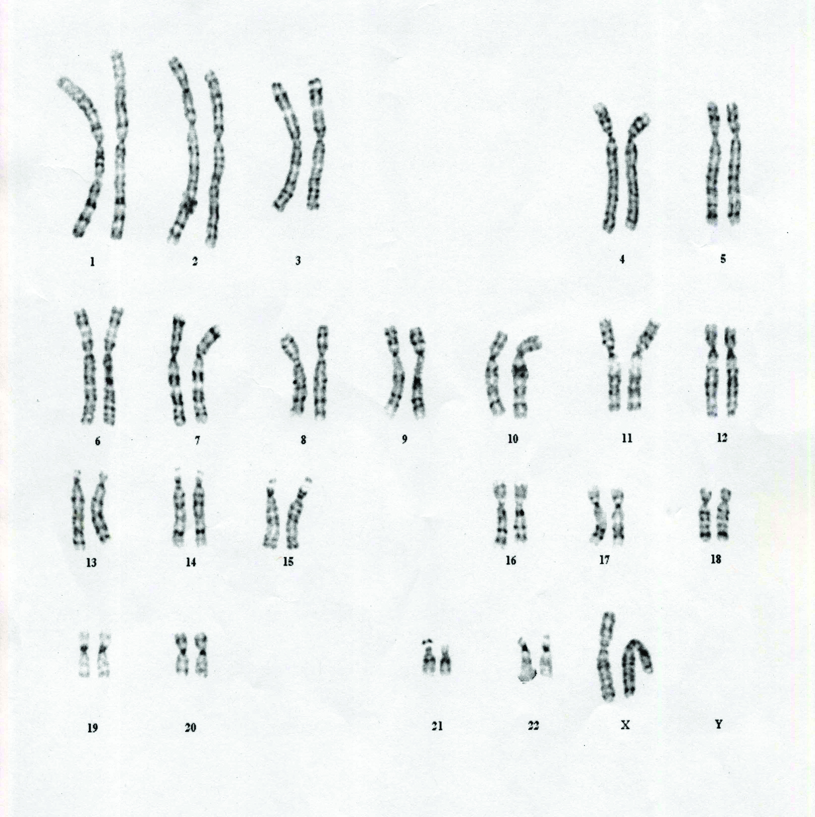 Chromosomes: The ENCODE Project seeks to unravel mysteries of the human genome. (www.mun.ca )