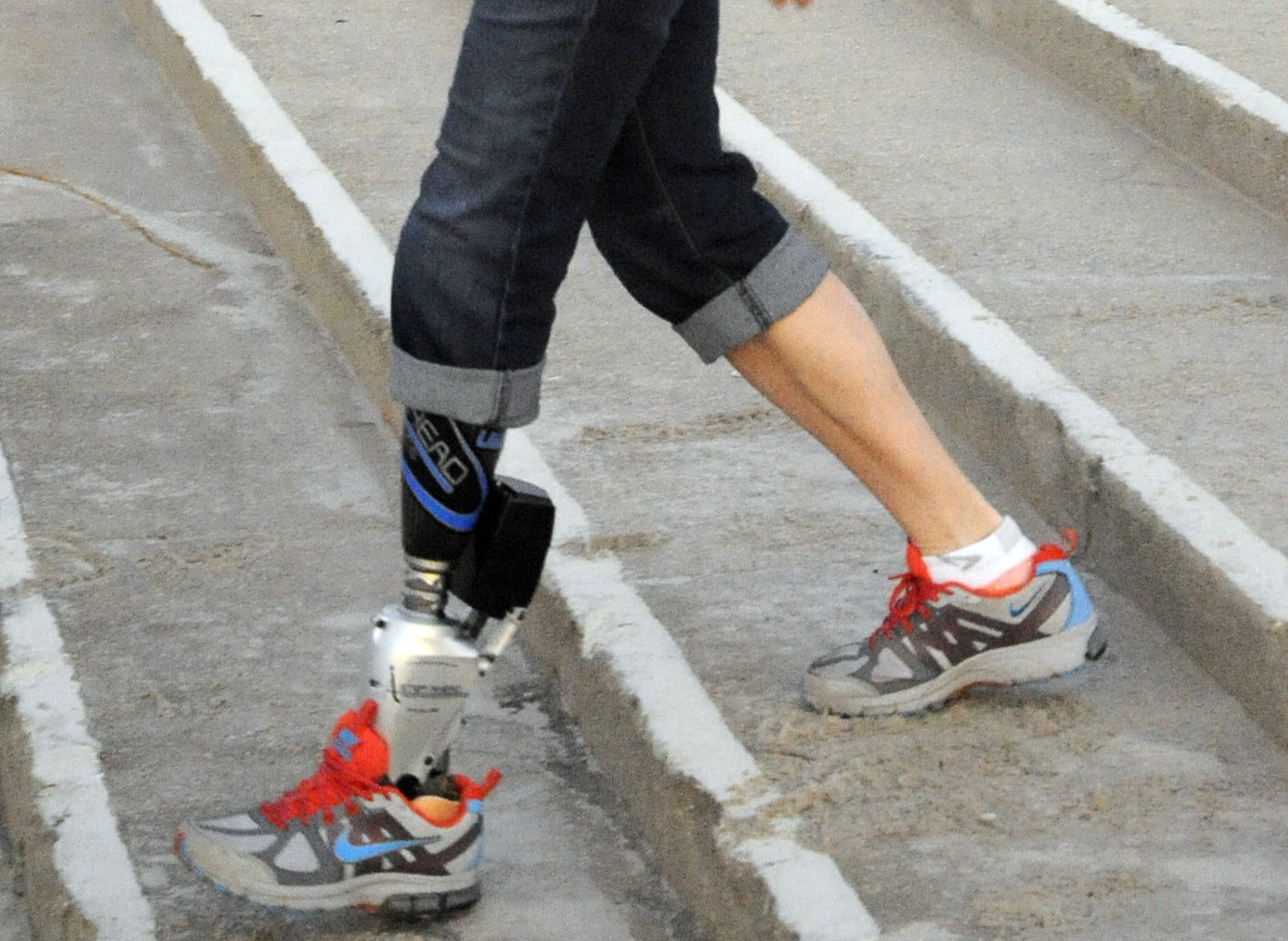 iWalk's bionic foot and ankle. (astepaheadprosthetics.wordpress.com)
